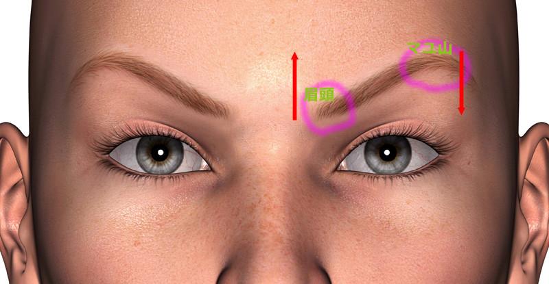 いかり眉の矯正1